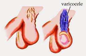Obat Penyakit varikokel